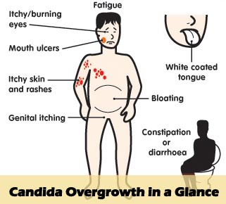 Candida Overgrowth in a glance